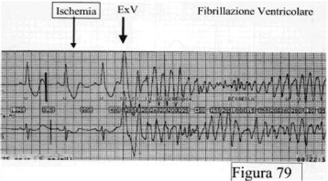 extrasistole a letto extrasistoli ventricolari