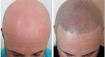 scalp micropigmentation in pakistan pigmentation hair the best hair of 2017