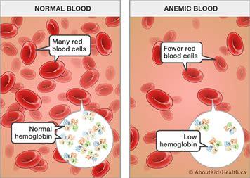 Darah Murni Blood Born anemia