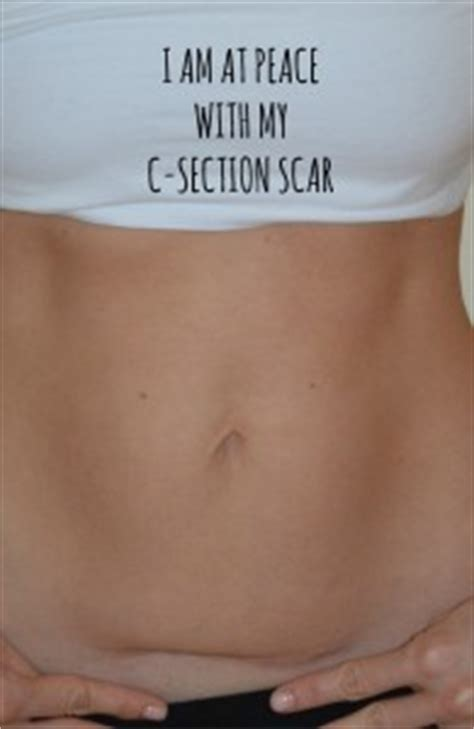 c section scar recovery how i learned to love my body quot imperfections quot and all