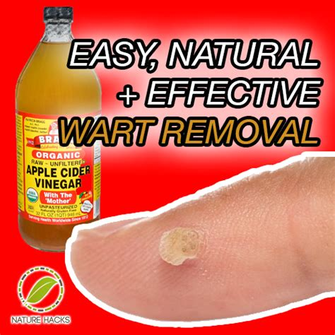 best home treatment for plantar wart foot wart treatment