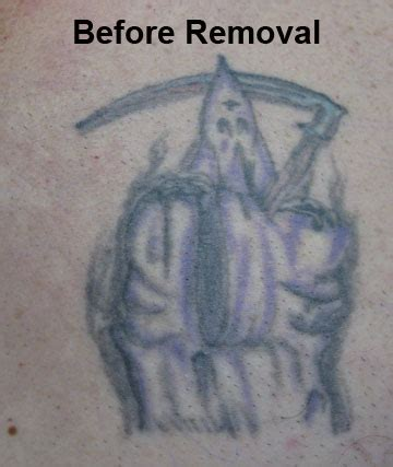 chest tattoo removal hashey author at removal a page