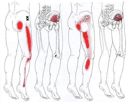 cadenas iliacas comunes dolor wikihospital