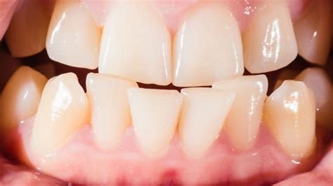 the best crooked teeth repair hospital dental
