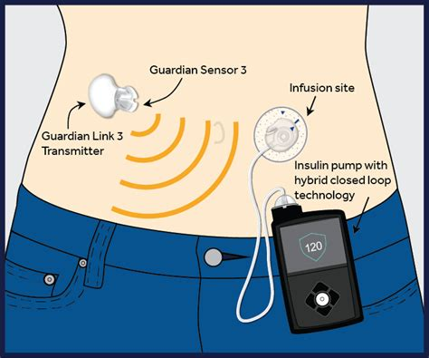insulin pumps and continuous glucose monitoring books the technology changing the lives of with type 1
