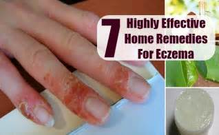7 highly effective home remedies for eczema