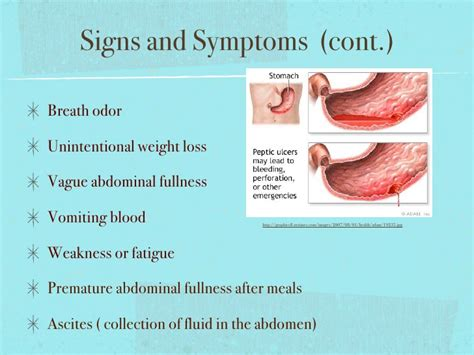stomach cancer symptoms questionnaire signs and symptoms digestive