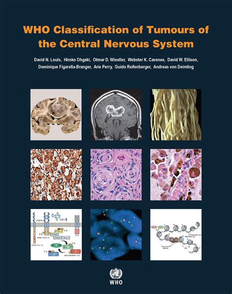 tumors of the nervus acusticus and the of the cerebellopontile angle classic reprint books neuropathology finally the new who cns tumor