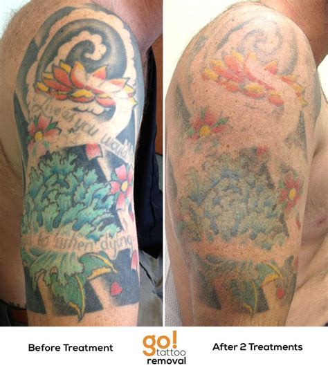 tattoo sleeve removal this client has chosen to remove their half sleeve it no