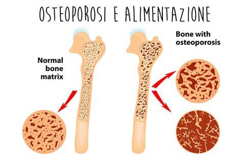 alimentazione e patologie patologie osteoporosi un aiuto dall alimentazione