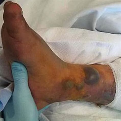 infected tattoo wait for it man dies after ignoring advice to wait two weeks before