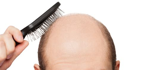 hair loss the about hair loss and baldness cures huffpost