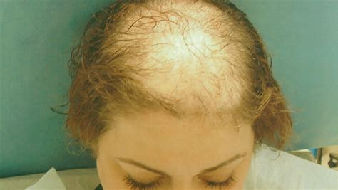 women hair loss long or short hair is there hairloss in women quora