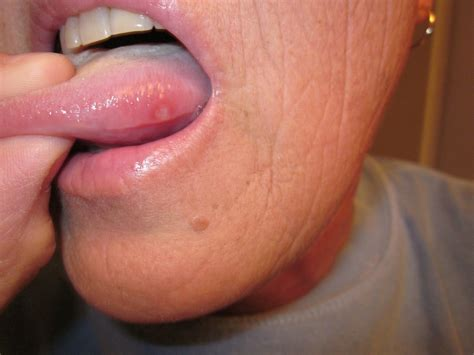 swollen red bumps on side of tounge new blog pics wallpaper bumps