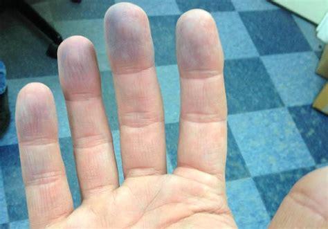 peripheral cyanosis symptoms causes diagnosis and