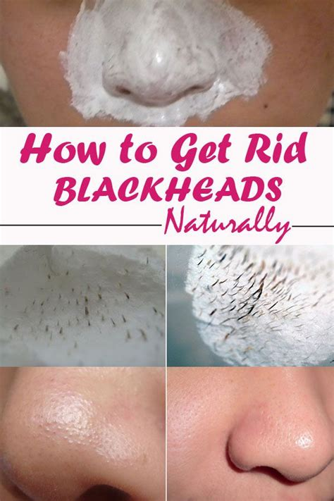 all and then click remove to get rid of all the threats on your pc if you want to get rid of blackheads with not much