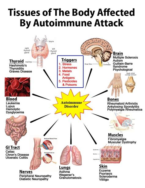 Detox For Autoimmune Disease by 1000 Ideas About Arthritis Causes On