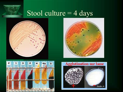 Stool Culture by 86 What Is Stool Culture Stool Culture A Fecal Is