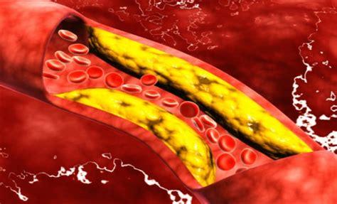 alimentos malos para el colesterol y trigliceridos 7 tips para reducir el colesterol malo salud180