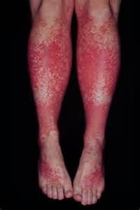 henoch schonlein purpura causes symptoms treatment