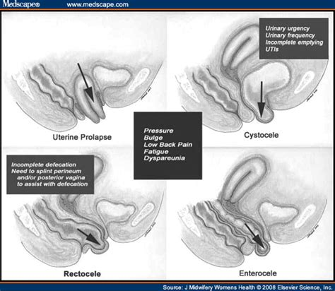 rectocele diagram biomechanics applied to pelvic organ prolapse prevention