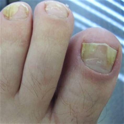 toenail lifting from nail bed common causes 187 nailflora