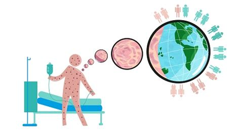 Infectious Disease Pharmacist by Infectious Disease Outbreaks Finding The Tipping Point