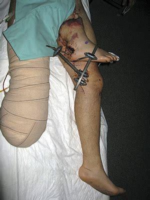 imagenes la ingle reimplantan la pierna derecha a un paciente tras hacerlo