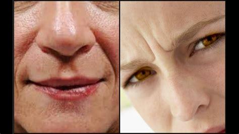 como quitar arrugas naturalmente como quitar arrugas profundas naturalmente con arnica