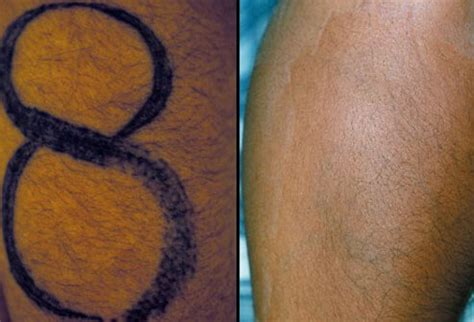 tattoo removal swelling slideshow safety and safe removal