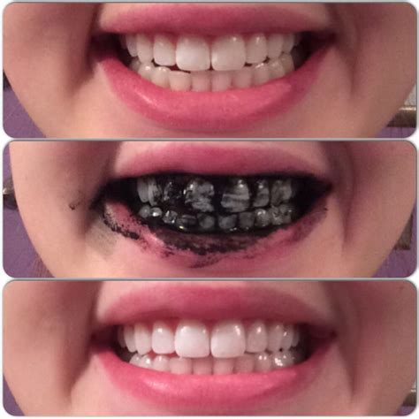 teeth whitening  activated charcoal activated