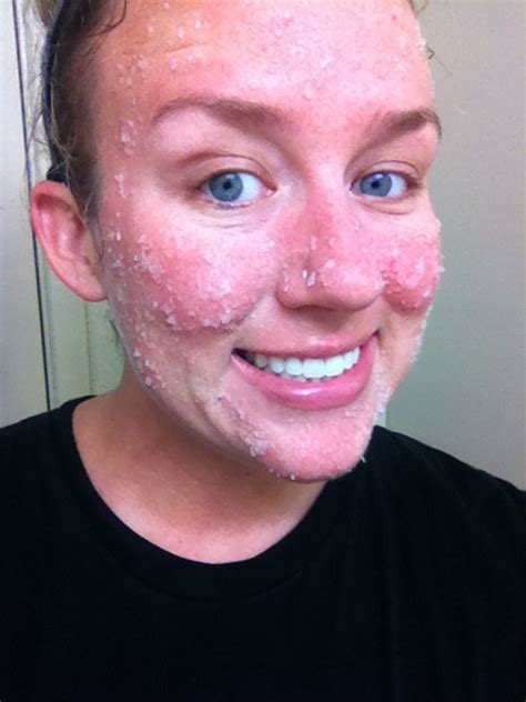 what does your face look like when you lie pregnancy acne
