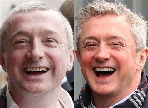 Next Facelift For Your Teeth 2 by Teeth Before And After Louis Walsh