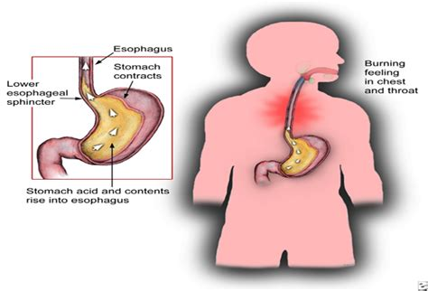 creatine xanax pancreas xanax pancreas