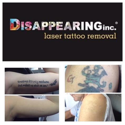 research on laser tattoo removal