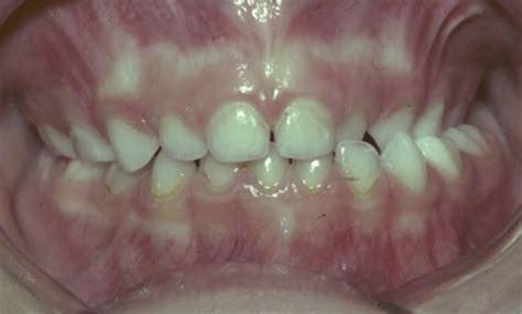 orthodontics cross bite skygate dental