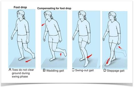swinging gait engineering solutions to foot drop biomedical