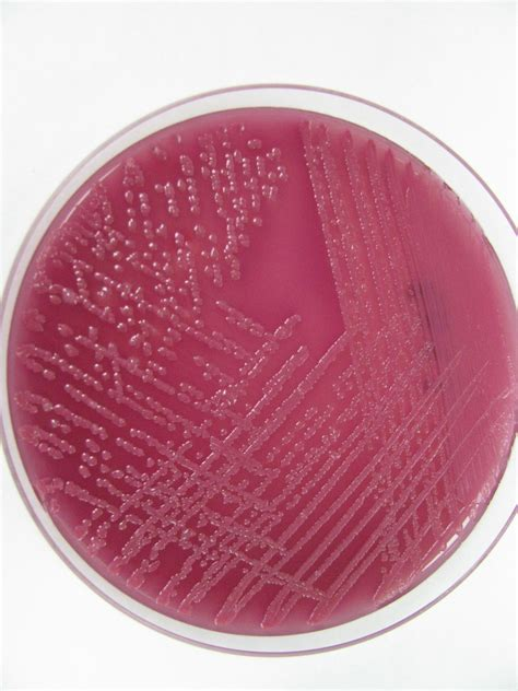 Klebsiella Oxytoca In Stool Culture by Macconkey Agar Search Engine At Search