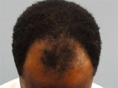 rapid hair loss male pattern baldness why most men are bald male pattern baldness healthfactsng