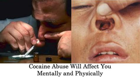 How Do You Detox From Cocaine by Cocaine Addictive Stimulant Consequences Most Effective