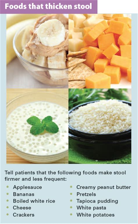 Foods For Stools by Of The Ostomy Specialist Clinician In Ileal Pouch