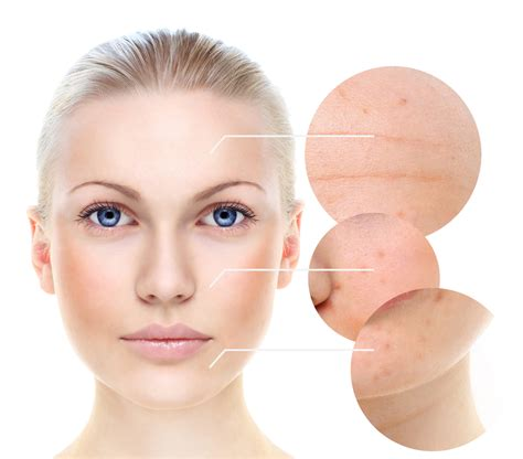 Glow Acne With Tto bring back that glow to your acne prone skin vine vera