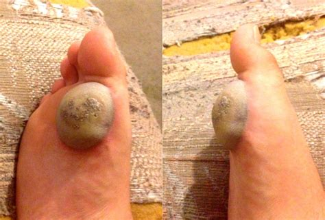 plantar wart removal diy diy do it your self