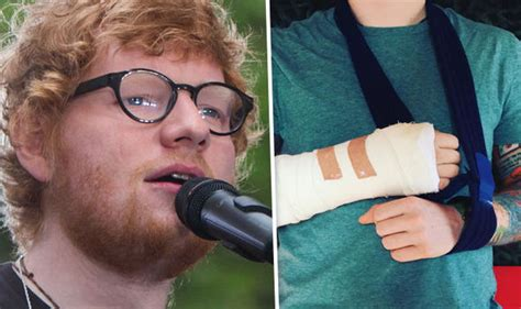 ed sheeran hand ed sheeran tour in crisis star with arm injury after bike