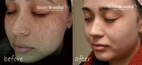 laser tattoo removal freckles laser freckle removal