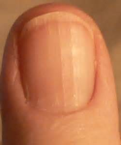 line on fingernail the bloomin couch what your nails say about your health