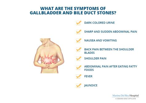 gallstones healthwise medical information on emedicinehealth gallstones symptoms causes treatment emedicinehealth