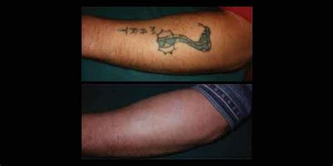 denver tattoo removal laser removal mad medspa denver co