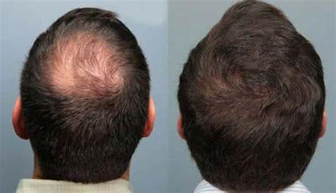 alopecia celulas madre 2016 tratamentos para alopecia androgen 233 tica dicas o que fazer