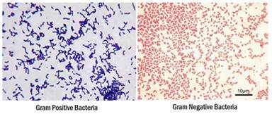 what color does gram positive bacteria stain gram staining principle procedure interpretation and